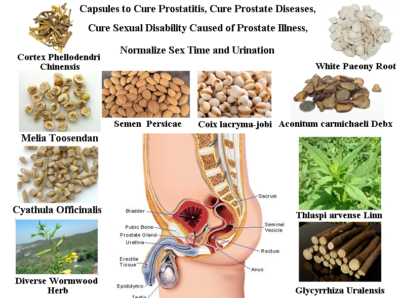 Formula of Curing Prostate Diseases, Solve Mens Problem, Cure Prostatitis, Get a Healthy Prostate in 2 Months, 50 pcs/lot