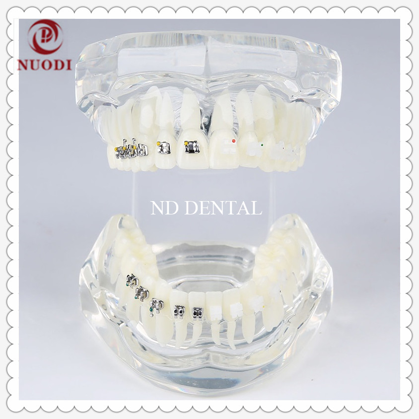 Teeth Model with Metal and ceramic bracket M3003/Dental Orthodontic teeth model with bracket/Dental lab clinic study teeth model transparent dental orthodontic mallocclusion model with brackets archwire buccal tube tooth extraction for patient communication