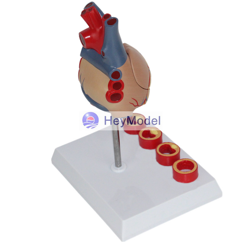 HeyModel Enlarged anatomical model of medical human heart with number 1: 1 heart with thrombus enovo1 1 hi q human heart anatomical model of the heart of the heart physician teaching tools