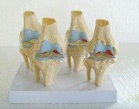 人間膝変形性関節疾患ギフトプレゼンテーションモデル 、膝関節モデル 、膝関節疾患モデル