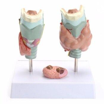 Anatómico humano glándula tiroides patología modelo de enseñanza de ...