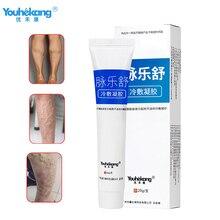 Youhekang Medical Varicose Veins Treatment Cream Effective Cure Vasculitis Phlebitis Spider Veins Pain Angiitis Ointment Plaster цена 2017