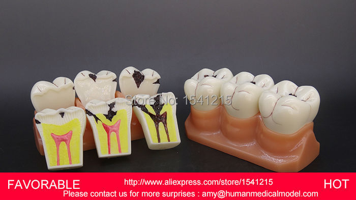 TOOTH DISEASE PATHOLOGICAL ANATOMICAL MODEL OF TEETH CARIES GINGIVAL,4 TIMES THE TOOTH CAVITY DEVELOPMENT MODEL-GASEN-DEN043 concepts of gingiva and gingival crevicular fluid