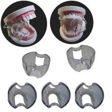 25 pcs/lot Dental Lip Retractor Cheek Expander Mouth Opener for Posterior Teeth Intraoral Equipment