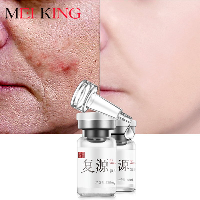 meiking-lyophilized-powder-plasmin-solution-face-serum-hyaluronic-acid-shrink-pores-anti-acne-oligopeptide-repair-cream-1-pairs