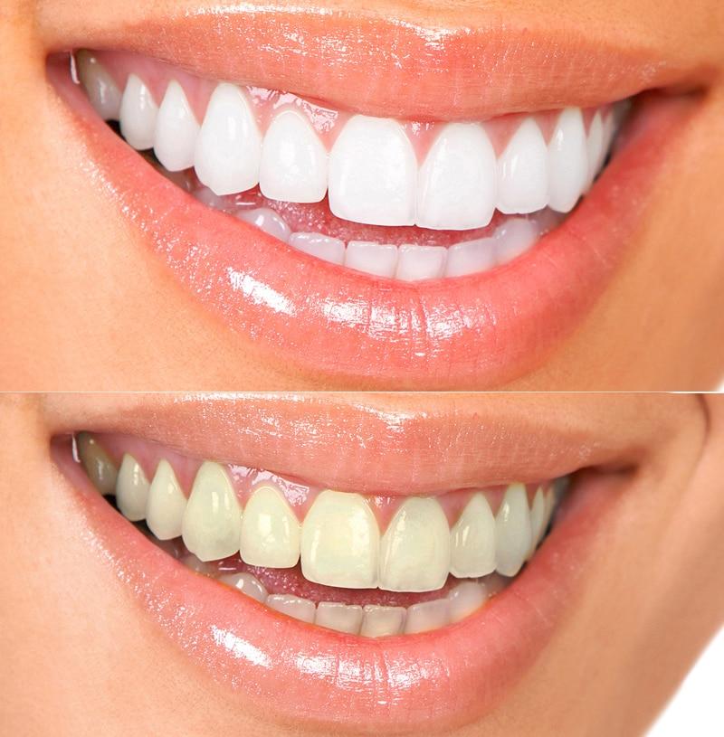 отбеливание зубов с помощью капы отзывы