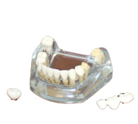 Free Shipping Implant model with bridge (lower) dental tooth teeth dentist anatomical anatomy model odontologia soarday children primary teeth alternating transparent model dental root clearly displayed dentist patient communication