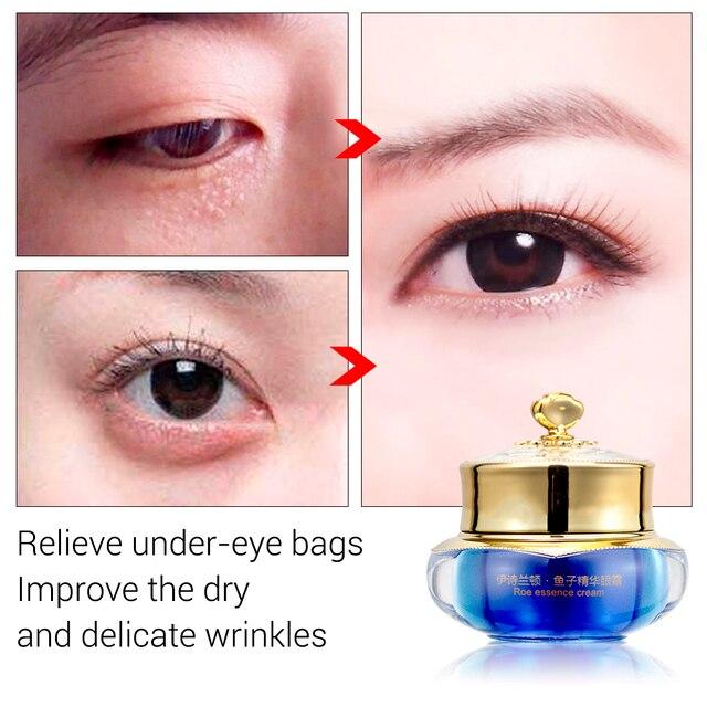 Isilandon Skin Caviar Lift Eye Cream Eye Gel Skin Care Ageless Anti