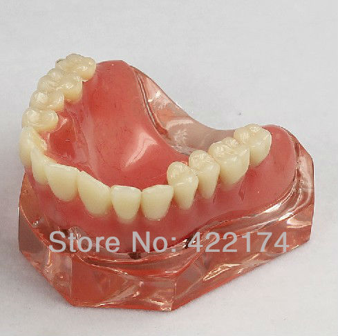 Free Shipping Over denture inferior with 4 implants dental for teaching tooth teeth dentist dentistry odontologia free shipping 1 1 permanent teeth dental tooth teeth dentist dentistry anatomical anatomy model odontologia