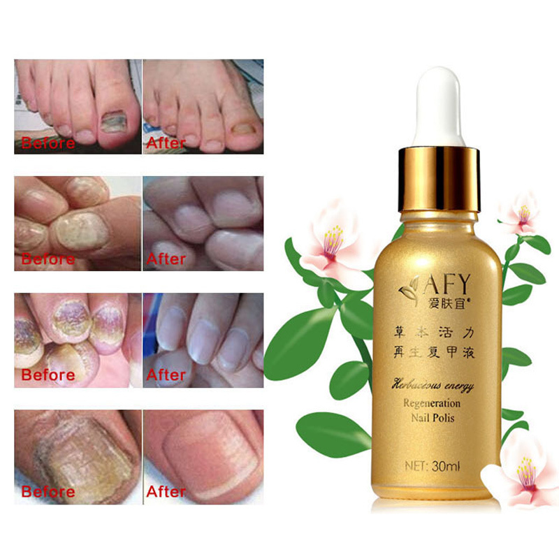 AFY Toenail Fungus Treatment Serum Foot Toe Nail Fungus Treatment ...