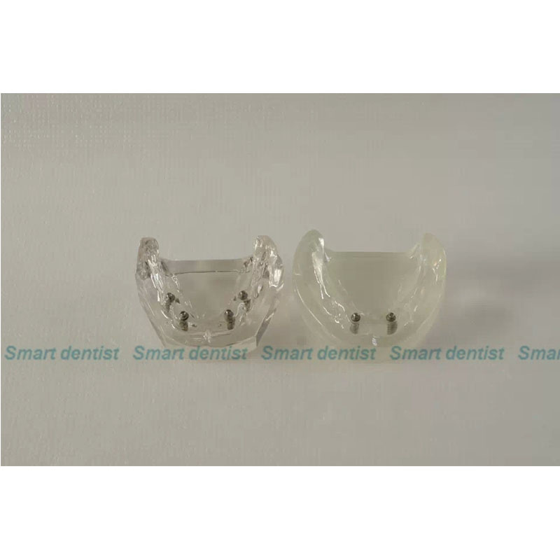 2016 Implant03-2transparent implant model( for doctor-patient communication use)2 pcs implants,dental model,patiention model dental overdenture inferior with 2 implants demo model study model