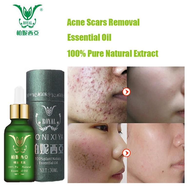 Face Care Cuidados Com A Pele Óleo Essencial Da Cicatriz Da Acne e Remoção de Manchas de Clareamento Remover Cicatrizes de Acne Tratamento Da Acne Creme para o Rosto Reparação Essência