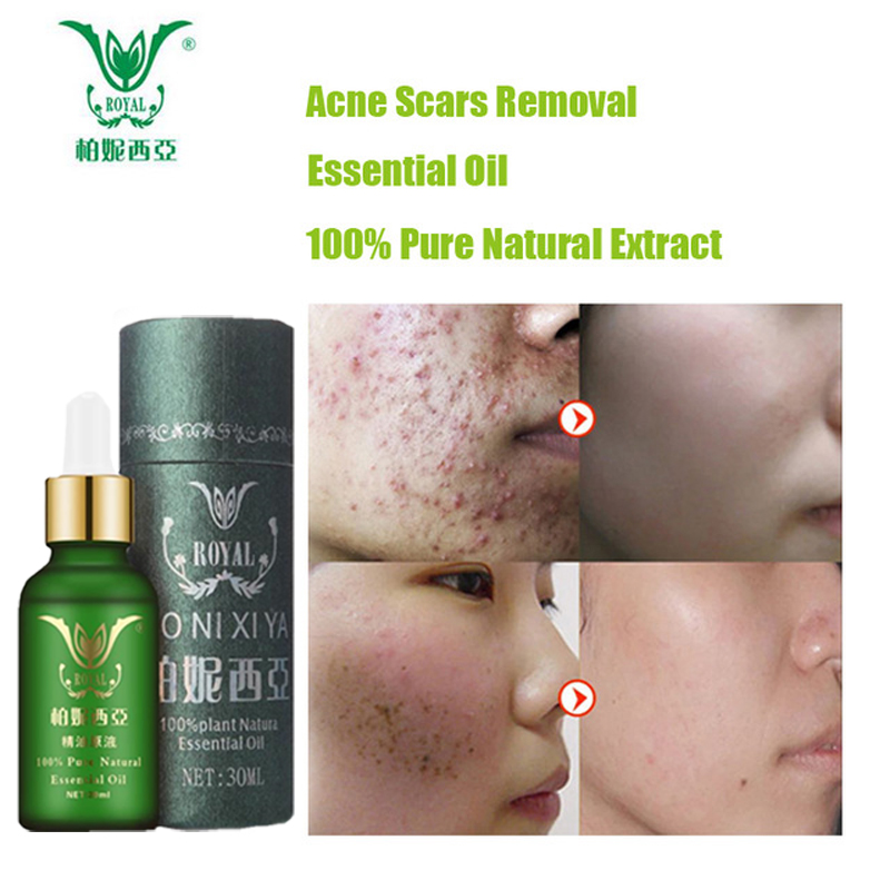 Face Care Essential Oil Acne Scar Spots Removal Skin Care Whitening Remove Scars Acne Repair Face Cream Essence Acne Treatment