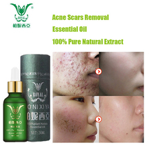 Face Care Essential Oil Acne Scar Spots Removal Skin Care Wh
