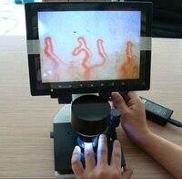 Digital Electron Capillary Microcirculation USB Microscope Blood Microcirculation Health Care Qquipment Teaching+8 Inch Display