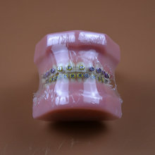 1pc Orthodontic teeth models dental education teeth model jaws with metal bracket Dental Models Teeth and Jaw Models