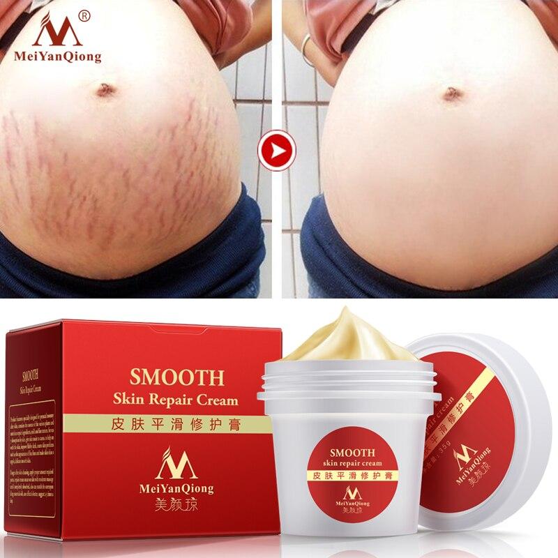 MeiYanQiong precioso cuerpo PIEL CREMA DE ESTRÍAS removedor de cicatriz eliminación poderoso posparto la obesidad embarazo Crema de Cara