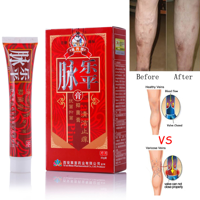 Varicose Veins Treatment Cream Ointment Vasculitis Phlebitis Spider Veins Pain Varicosity Angiitis Remedy Removal Herbal Cream