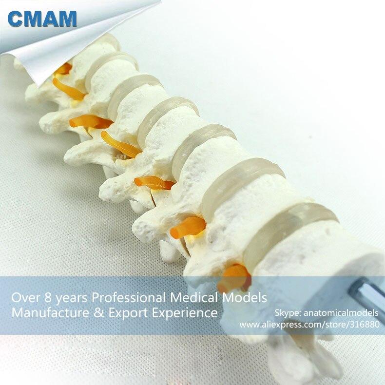 12390 CMAM-VERTEBRA14 Human Thoracic Vertebrae and Intervertebral Disc Skeleton Model 12390 cmam vertebra14 human thoracic model vertebral column skeleton model medical science teaching anatomical models