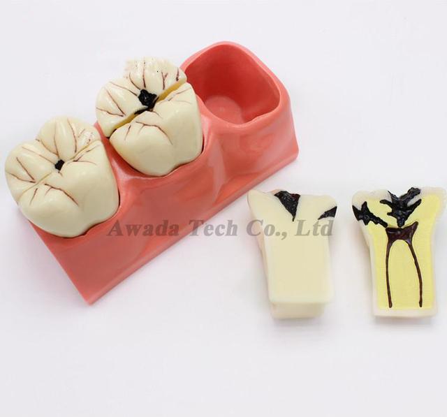 Dental patologia modelo abrangente, modelo de cárie dentária, Dentista para o Ensino Da Ciência Médica