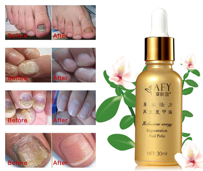 AFY Fungal Nail Treatment TCM Essence Oil Hand and Foot Whitening Toe Nail Fungus Removal Feet Care Nail Tools Nail Gel Polish