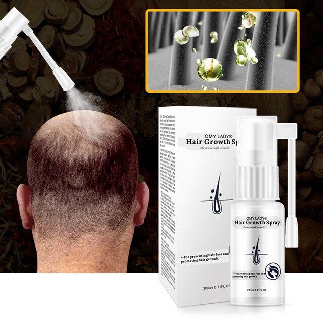 OMYLADY Men Hair Care Hair Growth Essential Oil Essence Original Authentic 100% Hair Loss Liquid Care Beauty Hair Growth Spray