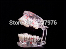 Full mouth dental model activity model dental materials Dental Materials Dental Jewelry dental diseases model dental lesions series model