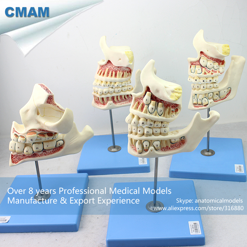 все цены на 12604 CMAM-DENTAL22 Demo Development Model of Child to Adult Teeth