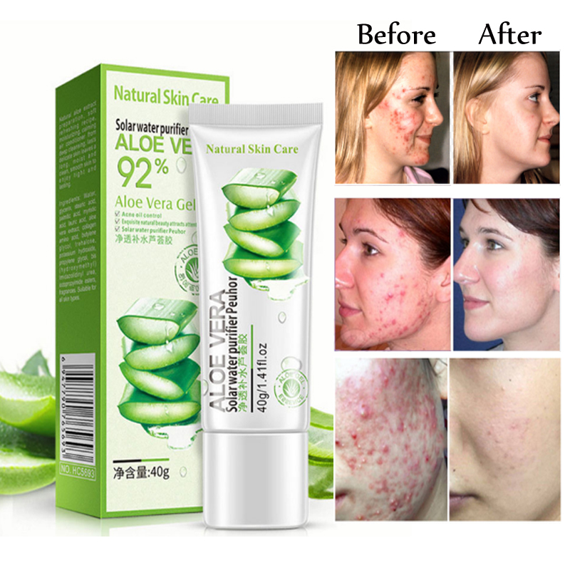 Aloe Vera Gel Face Acne Scar Skin Whitening Moisturizer Anti