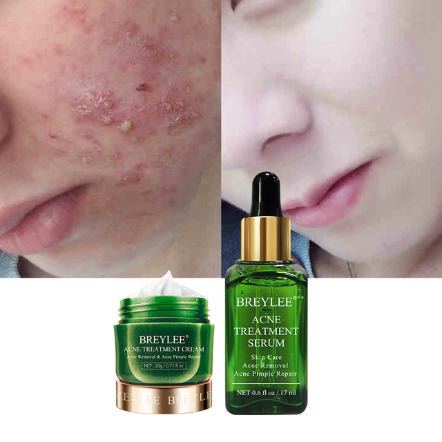 BREYLEE Acne Treatment Kit Acne Solution Serum Spots Pimple Removal Essence Anti Acne Scar Whitening Face Skin Care
