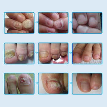 Removal Onychomycosis Paronychia Ance Oil Bactericidal Nail Fungal Nail Infection Toe Nail Fungus Treatment Care Multi-Use Top & Base Coat