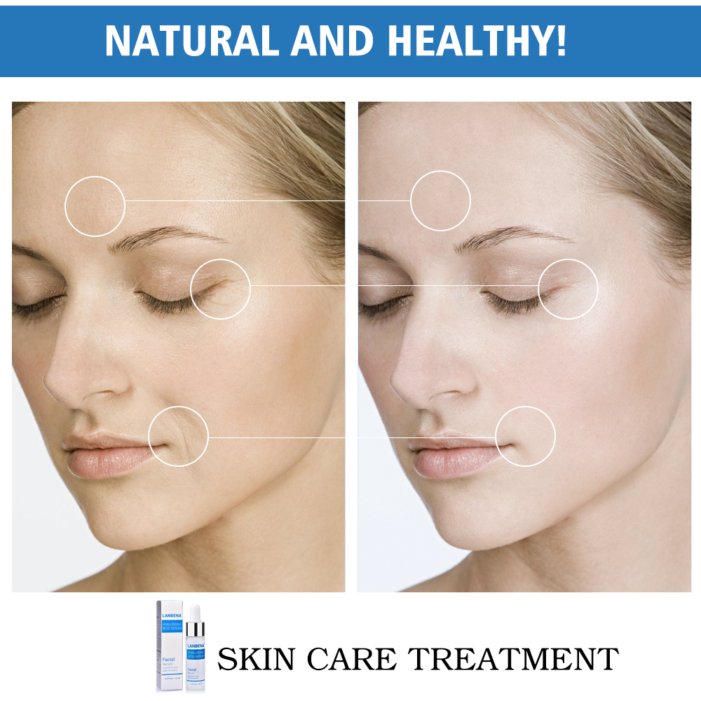 Hyaluronic Acid Serum Snail Serum Essence Acid Anti Wrinkles Face Acne Skin Repair Anti-Aging Moisturizing Whitening Skin Care  (3)