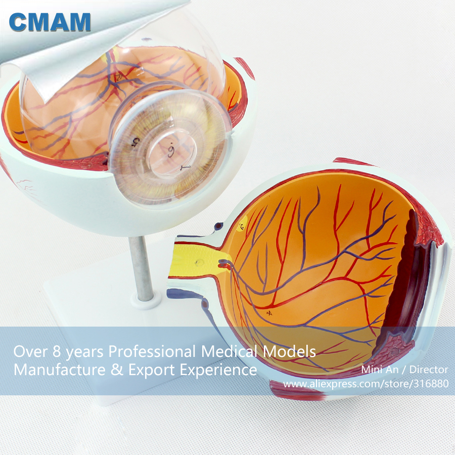 CMAM-EYE01 Oversize 6x Life Size Human Anatomy Eyeball Model,  Medical Science Educational Teaching Anatomical Models cmam viscera01 human anatomy stomach associated of the upper abdomen model in 6 parts