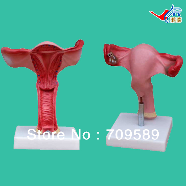 лучшая цена ISO Anatomical Uterus Model, Magnified Uterus Model