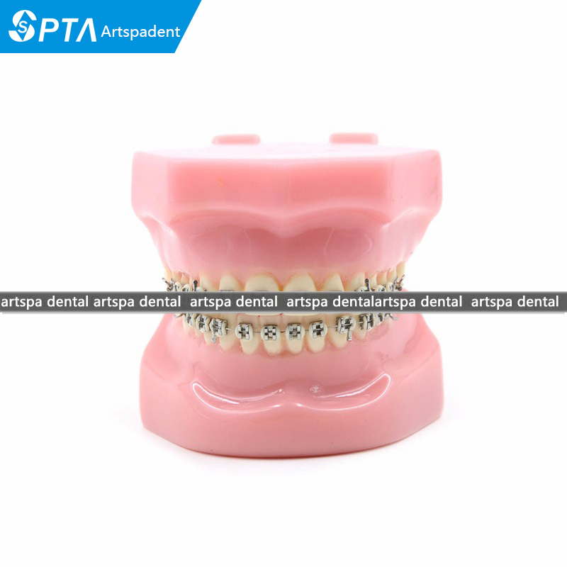 Dental Orthodontics Typodont Teeth Model Metal Brace Bracket Typodont with Arch Wire 2016 blue dental orthodontics typodont teeth model half metal half ceramic brace typodont with arch wire