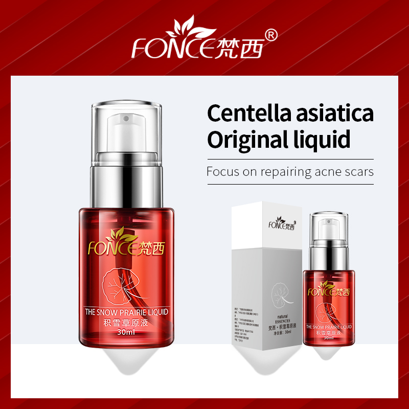 FONCE Centella asiatica Acne Treatment Serum Plant extract repair acne scars Liquid Face care Moisturizing Diminish marks 30ML in Serum from Beauty Health
