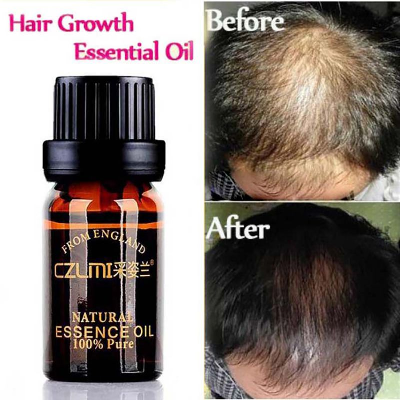 Natural Hair Care With No Side Effects Loss Products Grow Hair Faster Regrowth Hair Growth Products New