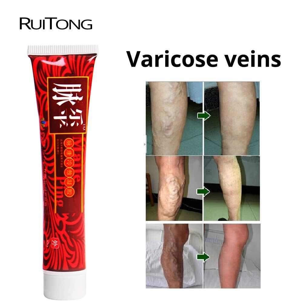 varicoză și dureri de spate comentarii pentru tratamentul venelor varicoase
