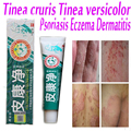 Китайский Крем для дерматит и экзема зуд псориаз зуд кожи лечения дерматита, экзема, псориаз, зуд