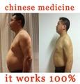 Peso produtos da perda de peso cinto de emagrecimento queimar gordura remendo magro para emagrecimento minceur parches adelgazantes afvallen