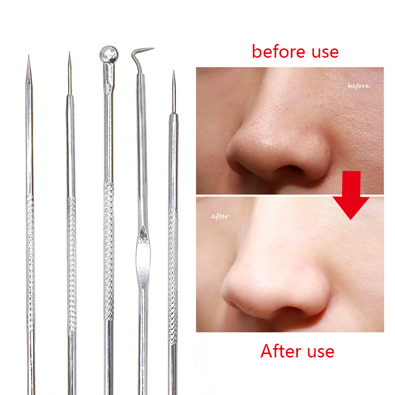 Image 2 - Black Dot Pimple Blackhead Remover Tool Needles For Squeezing Acne Tools Spoon for Face Cleaning Comedone Extractor Pore Cleaner-in Face Skin Care Tools from Beauty & Health