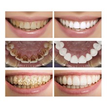 Teeth Whitening Essence Powder Cleaning Removes Plaque Stains