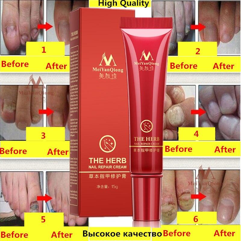 Herbal Nail Treatment Onychomycosis Paronychia Anti Fungal Nail Infection Good Result Chinese Herbal Toe Nail Fungus Treatment Онихомикоз