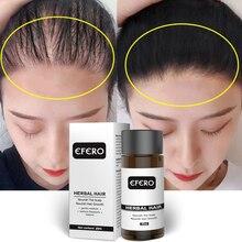EFERO Hair Growth Essence Oil Hair Beard Growth Serum Anti-hair Loss Products Hairs Care Treatment Essential for Women Men 20ML