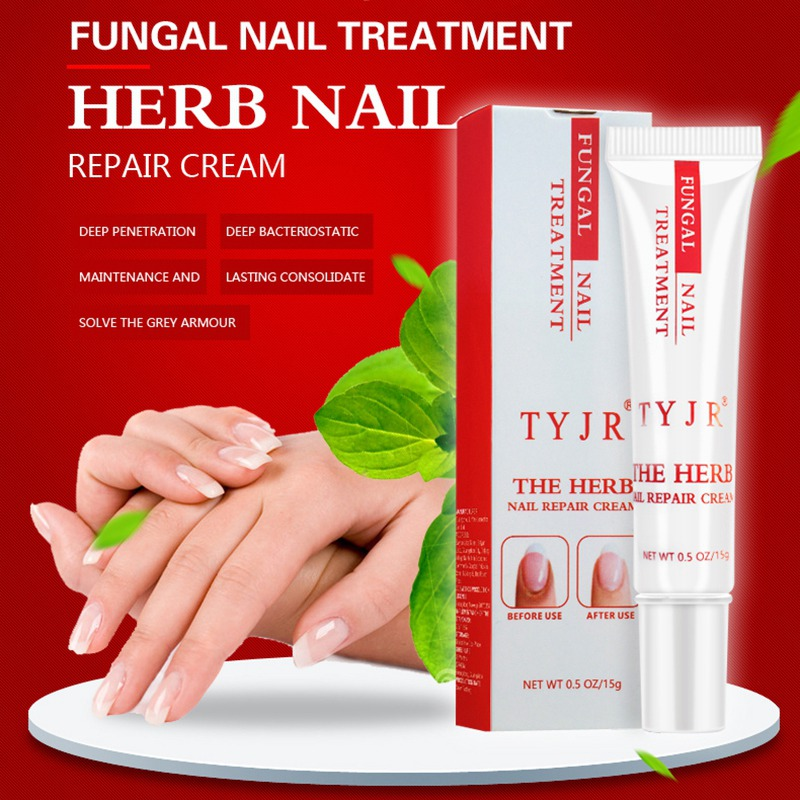 Original Nail Care Nail Fungus Oil Onychomycosis Paronychia Anti Fungal Nail Infection Repair Nails Kills 99.9% Bacteria Ne Various Styles Beauty & Health Nail Treatments