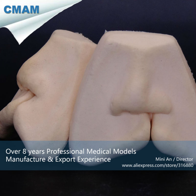 Super September CMAM-TOOTH15 Oral Dental Cleft Lip Suture Training Model, Soft Lip Model growth in cleft lip and palate subjects