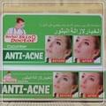 30g Deixe o seu rosto a assumir um novo olhar Pepino Creme Anti-acne