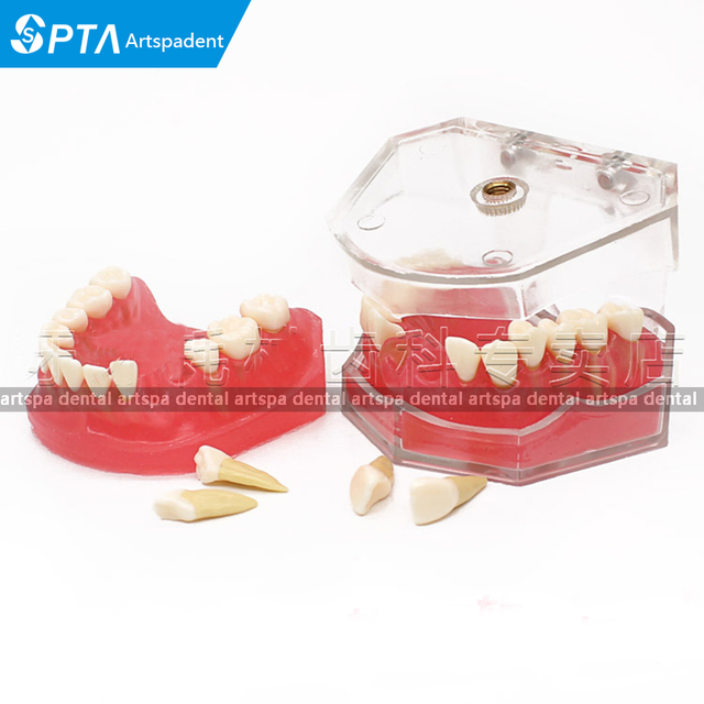 US $43 72 6% OFF|Dental Mold Removable Teeth May Gingival Oral Teaching  Model Gingival Practice teeth Mold teeth Model-in Teeth Whitening from  Beauty