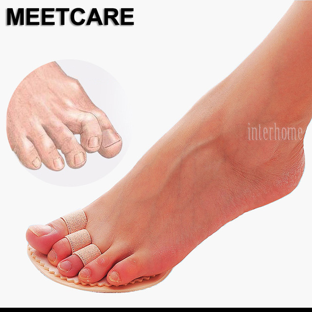 1 Pair Toes Overlap Hammer Toe Correction Pad Soft Bunion Splint Corrector Forefoot Mat Brace for Hallux Valgus Foot Care
