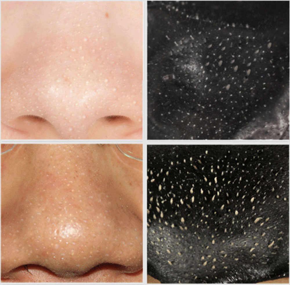 Mascarilla Facial mascarilla negra limpieza profunda purificación cabezal negro eliminación de poros mascarilla Facial máscara Unisex #40